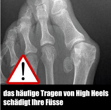 high-heel-schaden